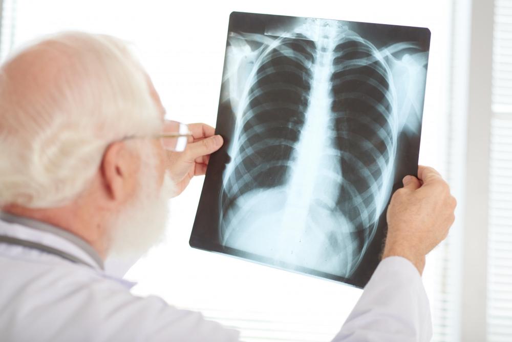 azbeszt okozta tüdőrák